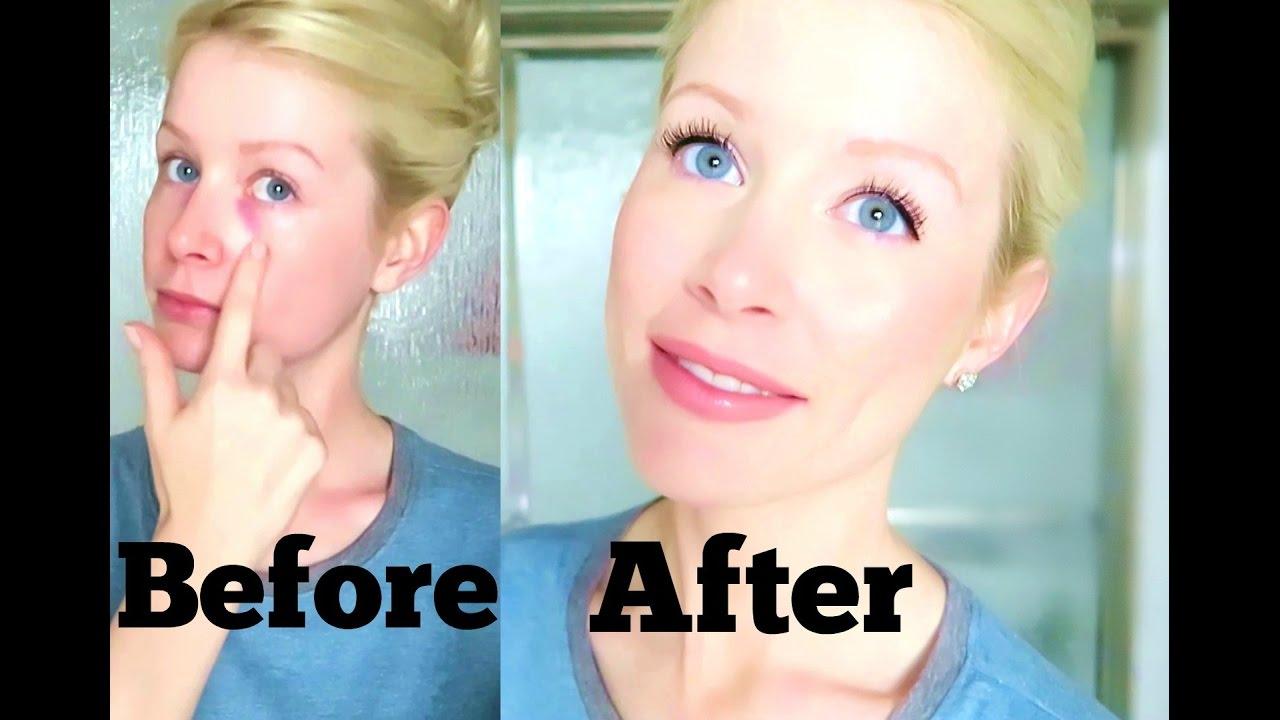 5 Minute Makeup Tutorial Covering My Black Eyes Youtube