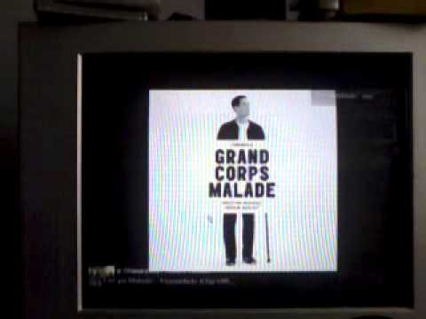 Grand Corps Malade Le Bout Du Tunnel