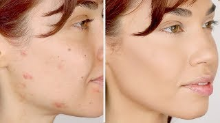 HOW TO COVER ACNE Flawless Foundation Routine for Acne Eman