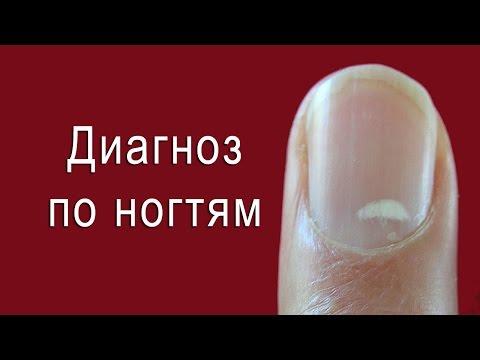 Ногти желтого цвета причина
