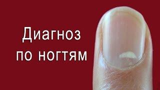 видео Медицинская диагностика организма и здоровья человека