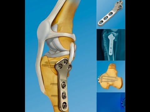 cirugia TPLO. Rotura ligamento cruzado en perros - YouTube