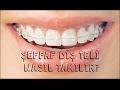 Şeffaf diş teli nasıl takılır? | www.meltemdis.com