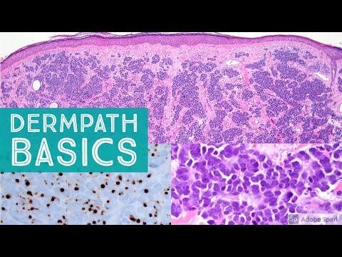 Basic Dermpath Cases 5 - Explained by a Dermatopathologist