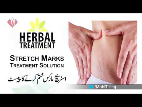Dr. Umme Raheel – Stretch Marks Treatment Solution – Health And Beauty Tips