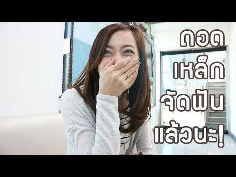 จัดฟัน | ถอดเหล็กจัดฟันแล้วเด้อออ! | sMo FatiiMa