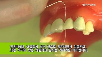 [대한치주과학회] 치실 및 치간칫솔 사용법