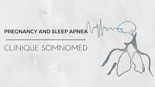 Pregnancy and sleep apnea