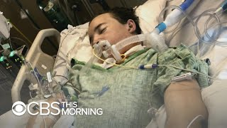 A michigan teenager who received what's believed to be the first double lung transplant shares warning for people addicted vaping, including his own bro...