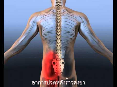 การผ่าตัดหมอนรองกระดูก  เอ็นโดสโคป   โรงพยาบาลบำรุงราษฎร์ กรุงเทพ