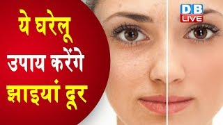 चेहरे की झाइयां दूर करने के आसान घरेलू उपाय Home Remedies for Bright Skin