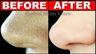 How Get Rid Large Pores Days
