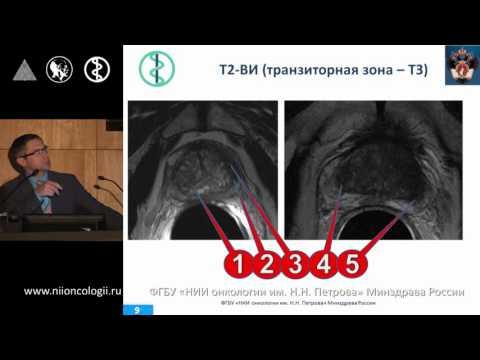 Рак предстательной железы: интерпретация МРТ на основе системы PIRADS. Мищенко А.В.