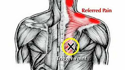 hqdefault - Shoulder Muscles Back Pain