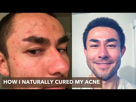 guy-clears-acne,-blemishes,-dry-&-oily-skin-in-1-day-with-apple-cider-vinegar-(before-&-after)