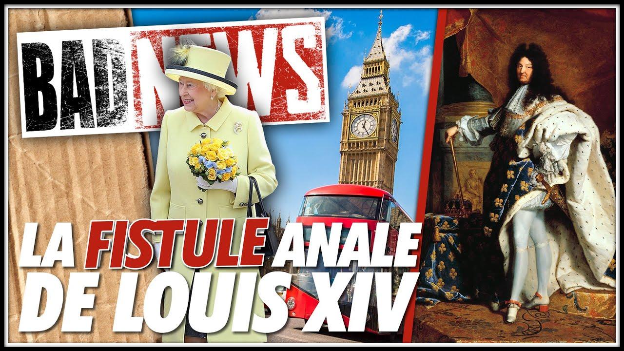 Download BADNEWS #130 LA FISTULE DE LOUIS XIV