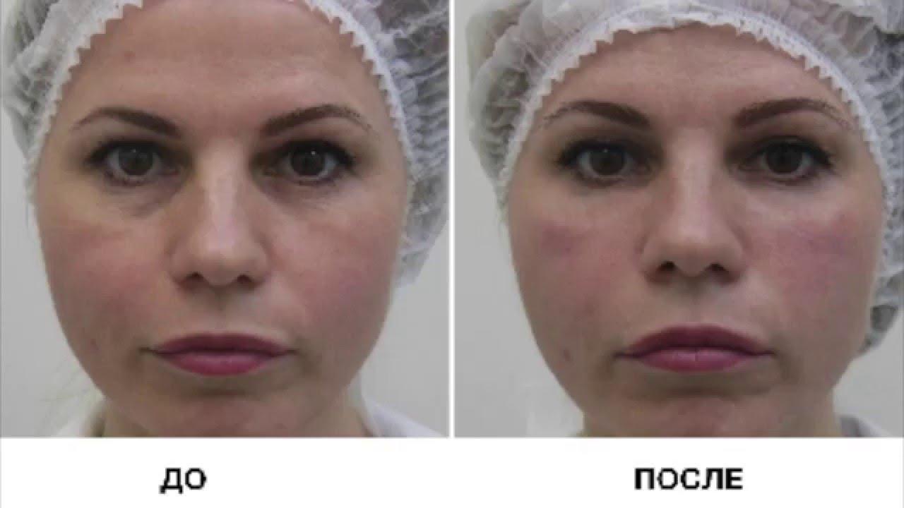 Заболевания которые могут быть причиной появления кругов и мешков под глазами