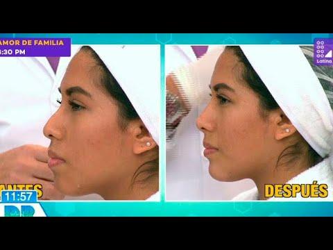 Mira en vivo un procedimiento de perfilamiento de rostro - Dr. en Casa