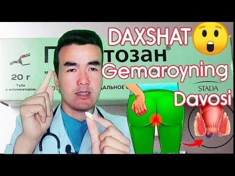 DAXSHAT #GEMAROY (BAVOSIL) NING JUDA TEZKOR DAVOSI TOPILDI