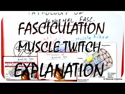 Muscle Twitch - Fasciculation Pathophysiology EXPLAINED
