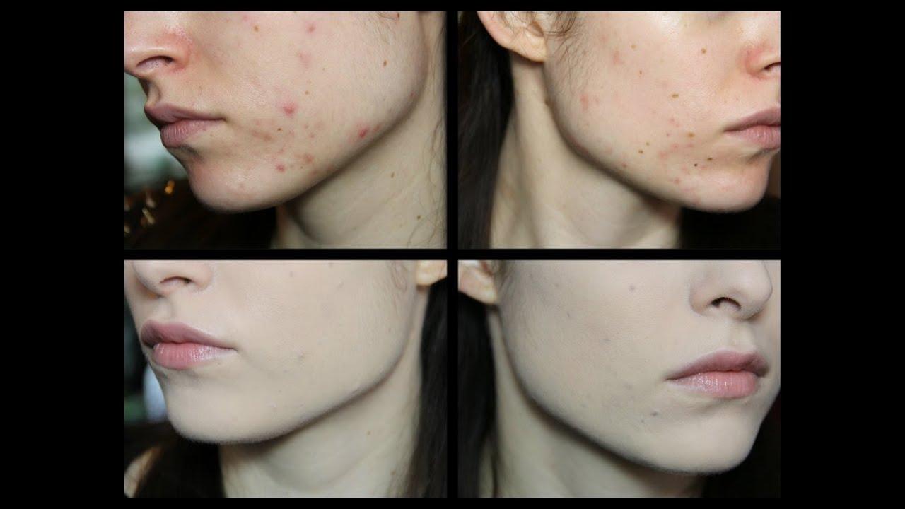 Cura di acne da medicine