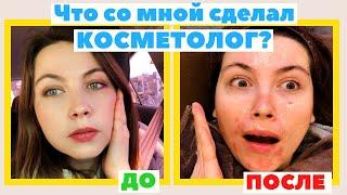 Аппаратная косметология в Корее лечение прыщей и уход за лицом