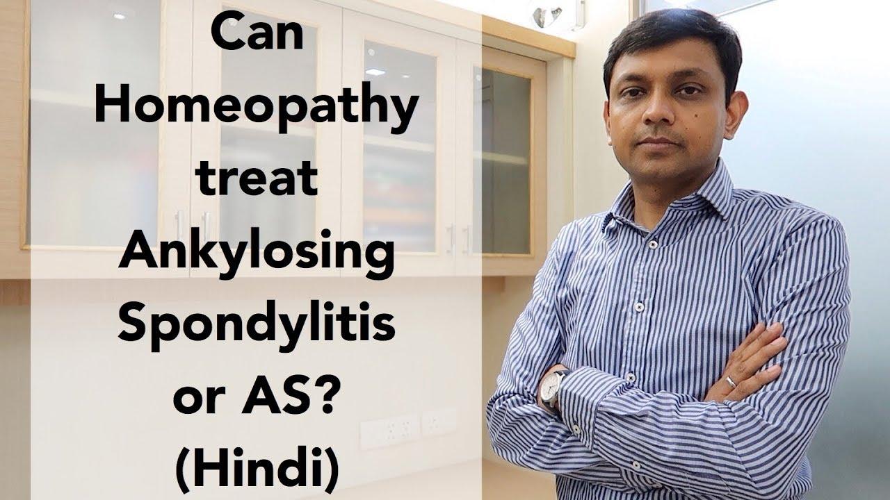 Ankylosing Spondylitis AS & its Homeopathic Treatment? including Lifestyle Tips | Hindi