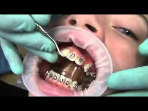 COMO SE PONEN LOS BRAKES Watch how we put your braces on!