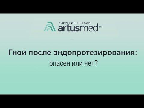 Гной после эндопротезирования сустава - опасен или нет? Лечение инфекции своевременно.