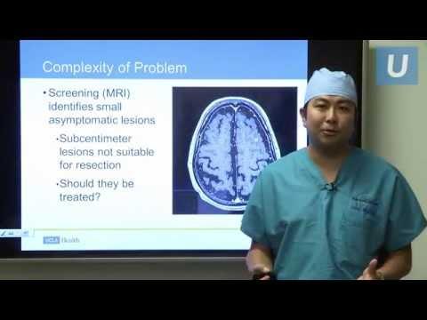 Cancer Treatment for Brain Metastasis   #UCLAMDChat Webinar