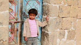 Война в Йемене: жизнь людей превратилась в ад