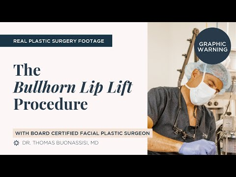 The Bullhorn Lip Lift With Board Certified Facial Plastic Surgeon Dr. Thomas Buonassisi In Vancouver