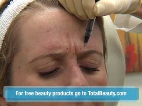 Watch a Botox Injection in the Skin