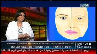 الدكتور والناس الحلوة   القضاء على التجاعيد والحصول على بشرة مثالية مع د.داليا شهاب
