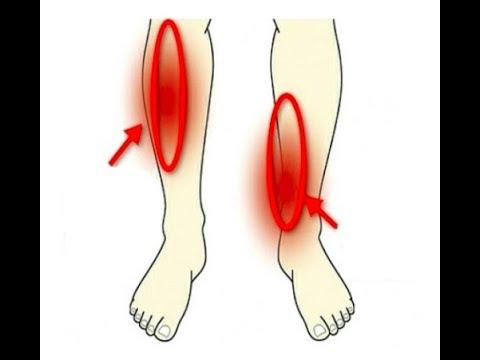 Нога болит ниже икры