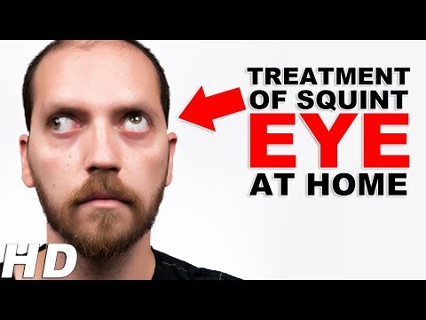 Treatment Of Squint Eye At Home In Hindi | देखिये भैंगापन का सटीक इलाज