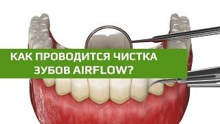 Чистка зубов AirFlow: этапы процедуры чистки налета на зубах.(, 2016-01-21T00:18:53.000Z)