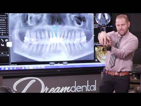 how-do-i-best-protect-my-dental-implant-while-it's-healing?