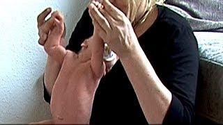 Palmar - palm of the hand grasp reflex / reaction 2