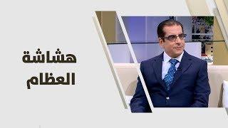 د. علي العتوم - هشاشة العظام