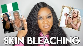 Blac Chyna Endorses 250 Bleaching Cream AND IT WORKS GirlTalk