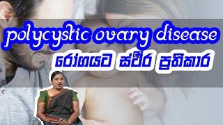 Polycystic ovary disease රෝගයට ස්ථීර ප්රතිකාර | Piyum Vila | 25 - 08 -2020 | Siyatha TV Thumbnail
