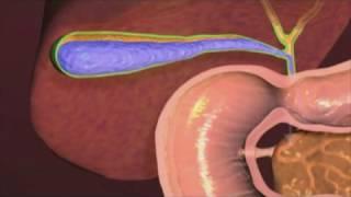 Cholécystectomie ( ablation de la vésicule biliaire )