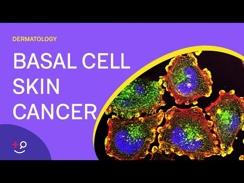 What Is Basal Cell Skin Cancer? - Basal Cell Cancer Explained [2019] [Dermatology]