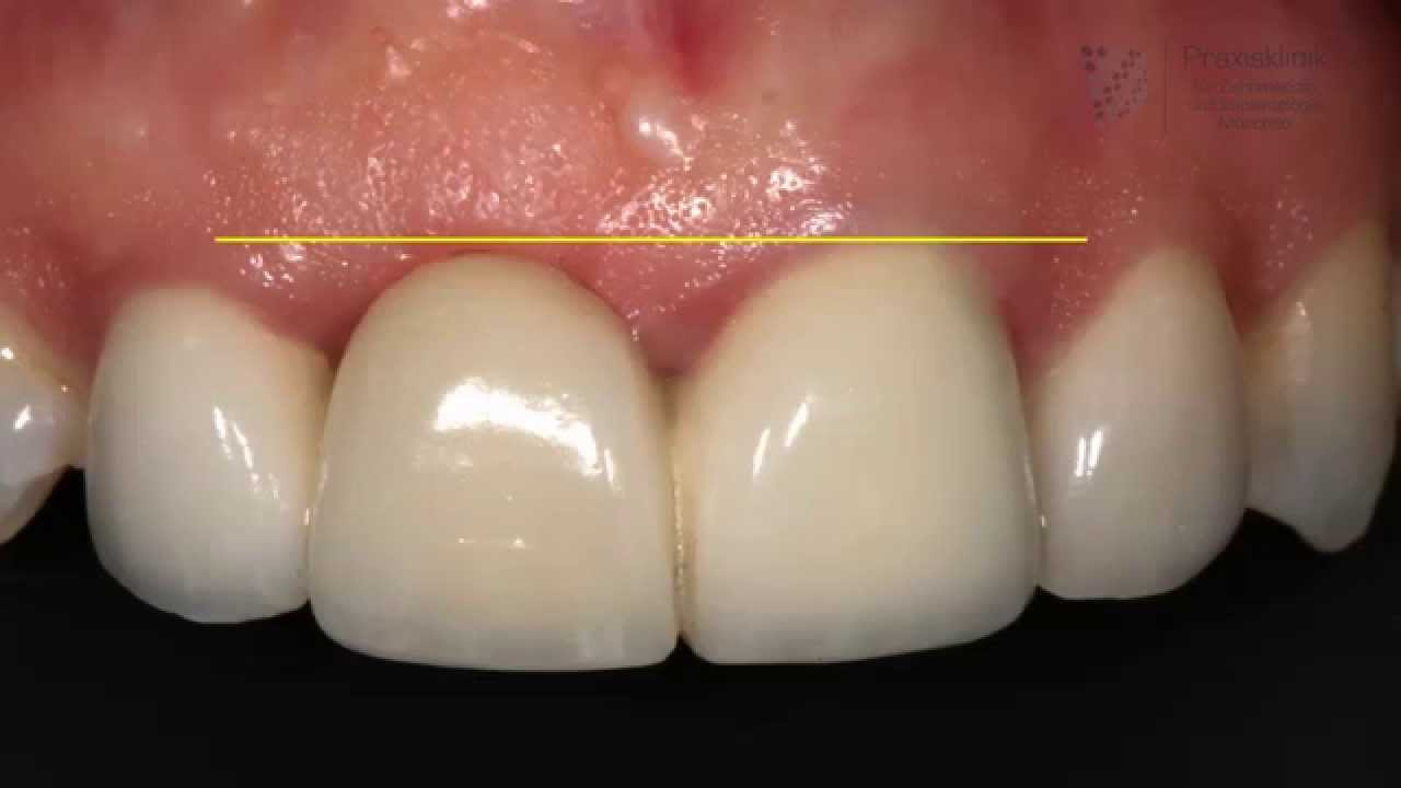 Nachher zahnfleischtransplantation vorher Zahnfleischtransplantation für