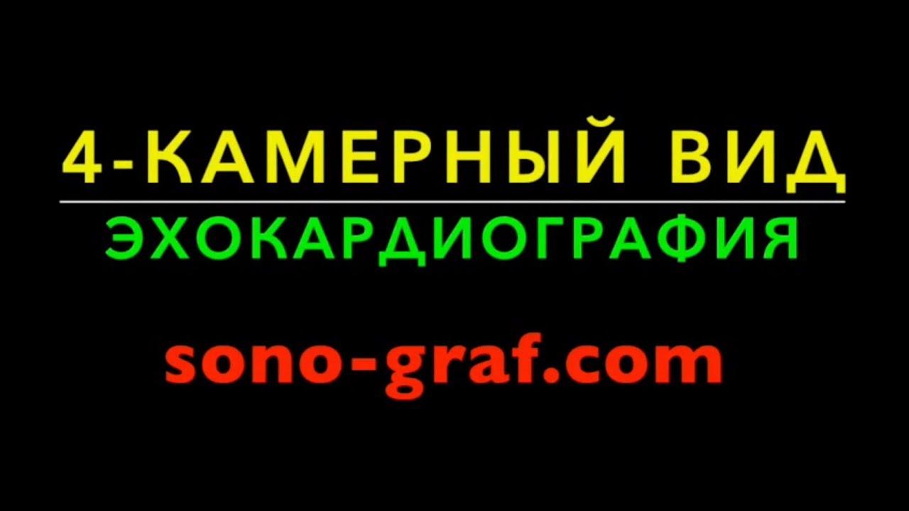 4-КАМЕРНЫЙ ВИД ЭХОКАРДИОГРАФИЯ УЗИ