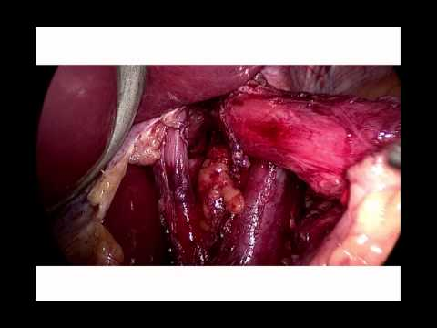 Nissen's Fundoplication - all you need to know and video of the operation