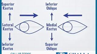 Squint Surgery - Challa Eye Care Centre