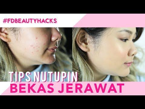 Tips Ampuh Nutupin Jerawat | FD Beauty Hacks