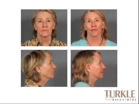 Facelift Indianapolis Indiana | 317.848.0001 | Dr Janet Turkle